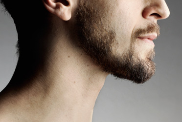 Laser Hair Removal for men's neck and nape