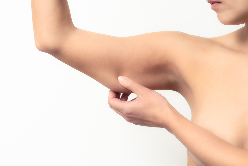 Woman pinching underarm fat promoting CoolSculpting treatment for arms