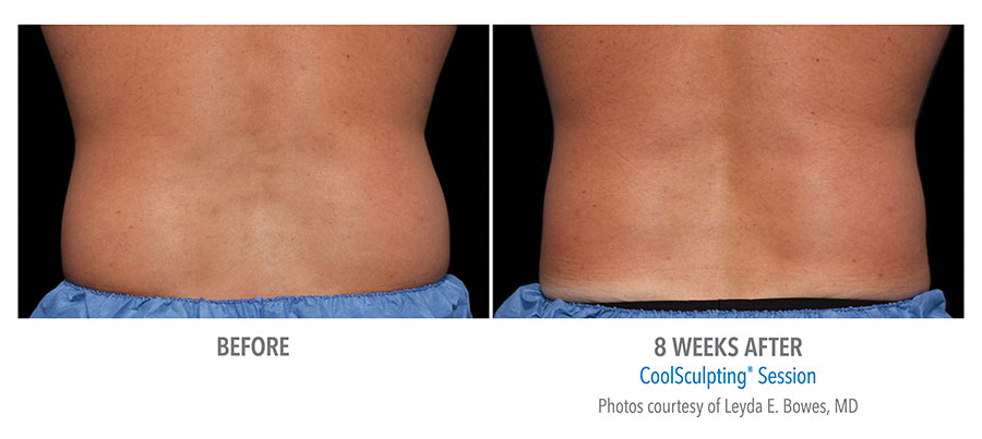 Before and after CoolSculpting treatment on man's lower back after 8 weeks by Dr. Leyda E. Bowles