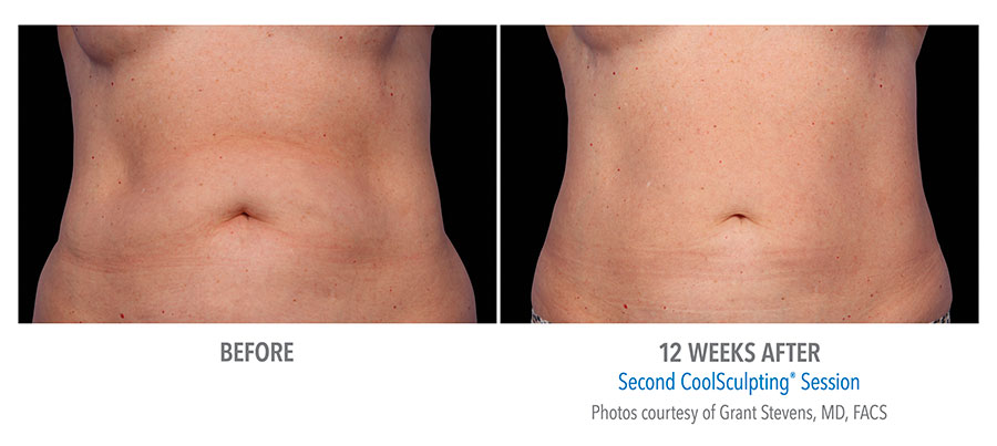 Before and after CoolSculpting treatment on a person's stomach and abs after 12 weeks by Dr. Grant Stevens
