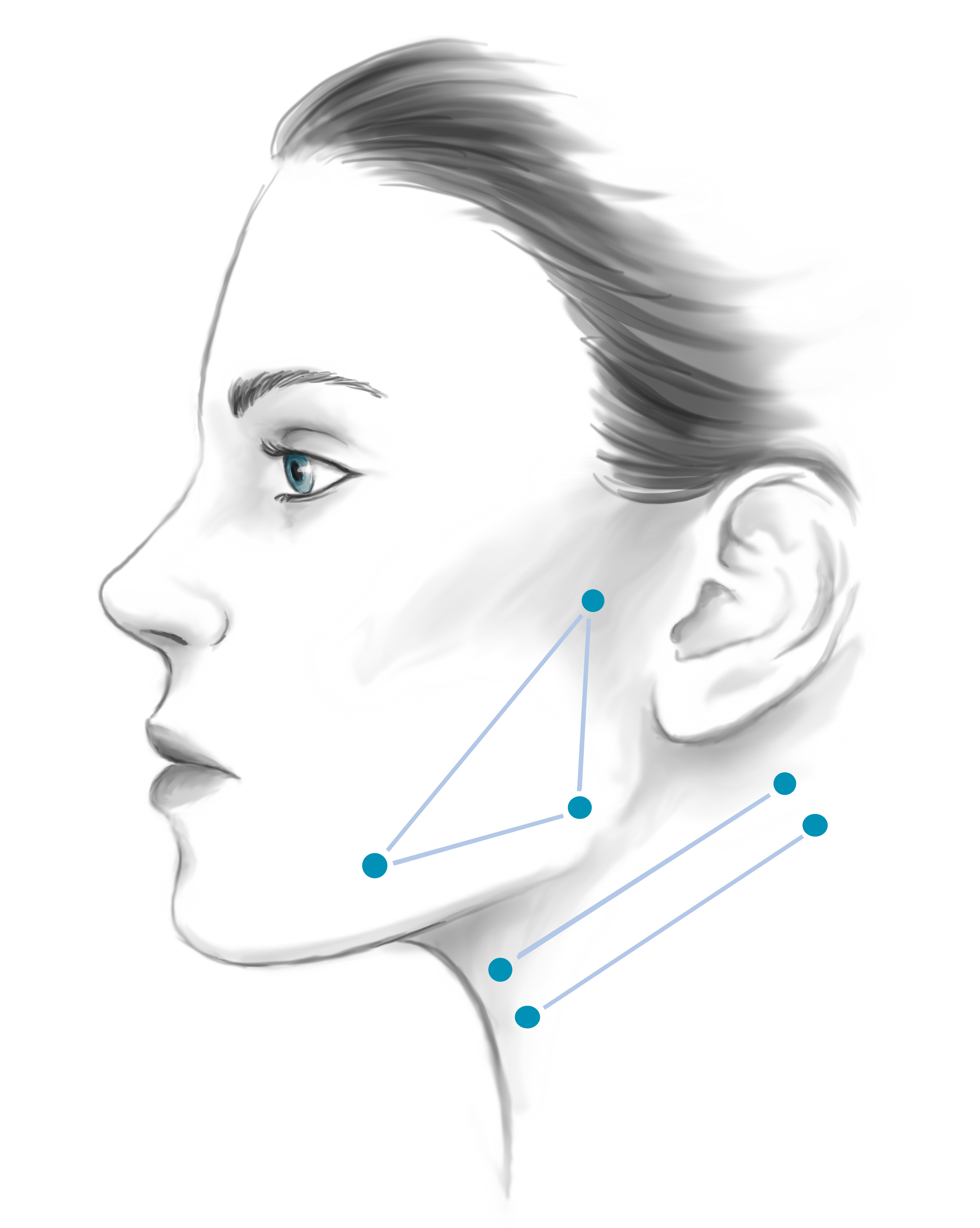 Side profile illustration of woman's face identifying cheekbones and neck for face lift