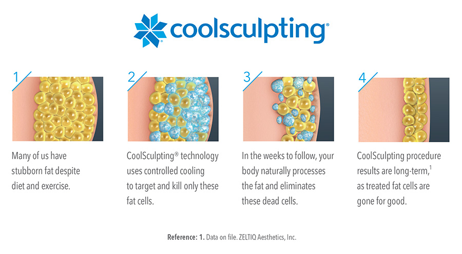 Four step diagram illustrating how coolsculpting works