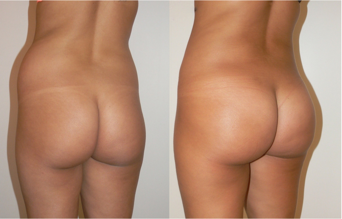 Before and after buttocks augmentation with brazilian butt lift treatment