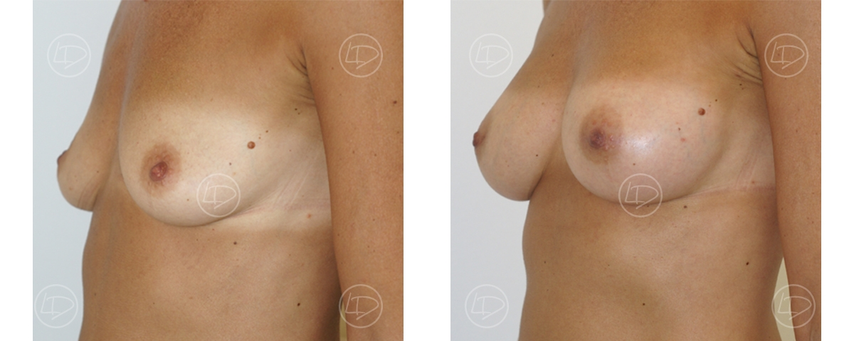 Before and after woman breast augmentation surgery