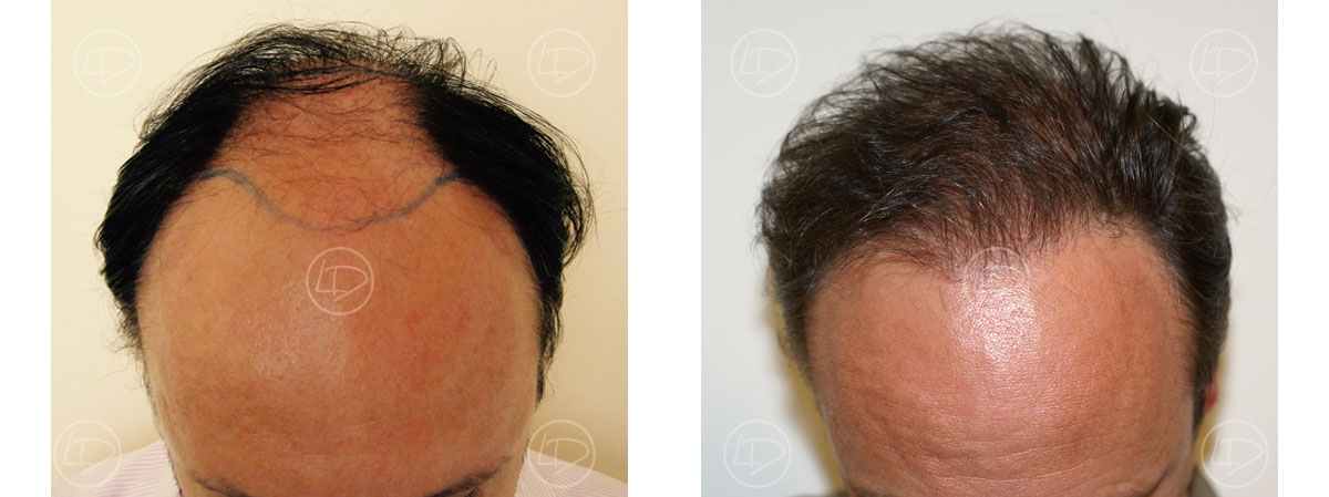 Treatement result before and after hair transplant.