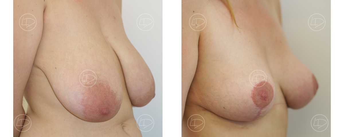 Before and after woman breast reduction surgery