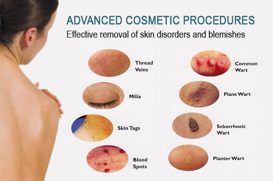 Diagram of Advanced Costmetic Procedures that are effective removal of skin disorders and blemishes like Thread veins, Milia, Skin Tags, Blood Spots, Common Wart, Plane Wart, Seborrhoeic Wart, Planter Wart