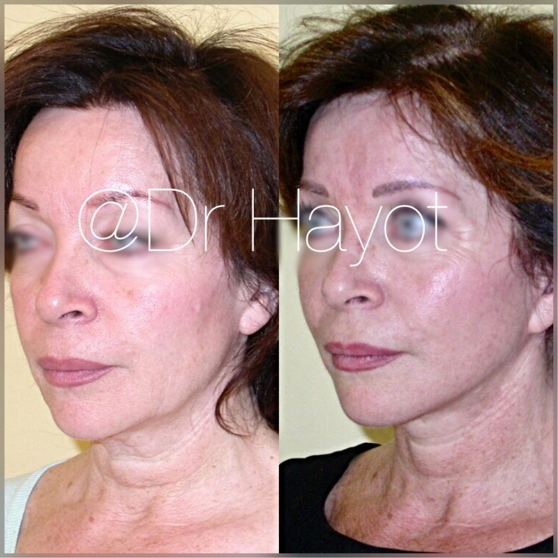 Mini Face Lift In London Facelift Surgery Epilium Skin
