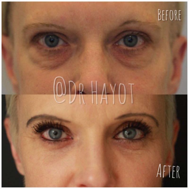Before and after dark circle under eye treatment on middle aged woman