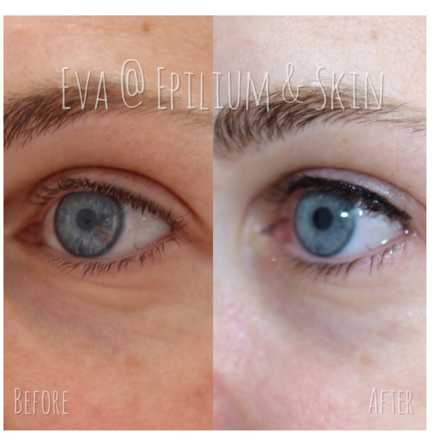 Before and after woman's eyes of permanent eyeliner tattoo