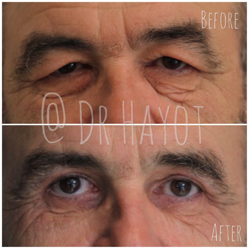 Before and after laser eyelid surgery on older man with wrinkles