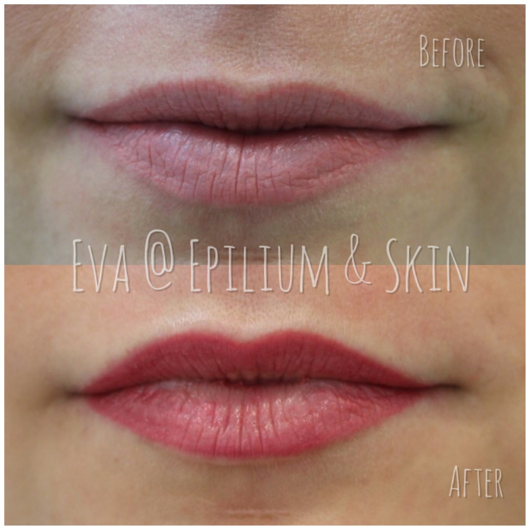 Before and after woman's lips after semi permanent Makeup treatment for fullness, definition, and colour intensity