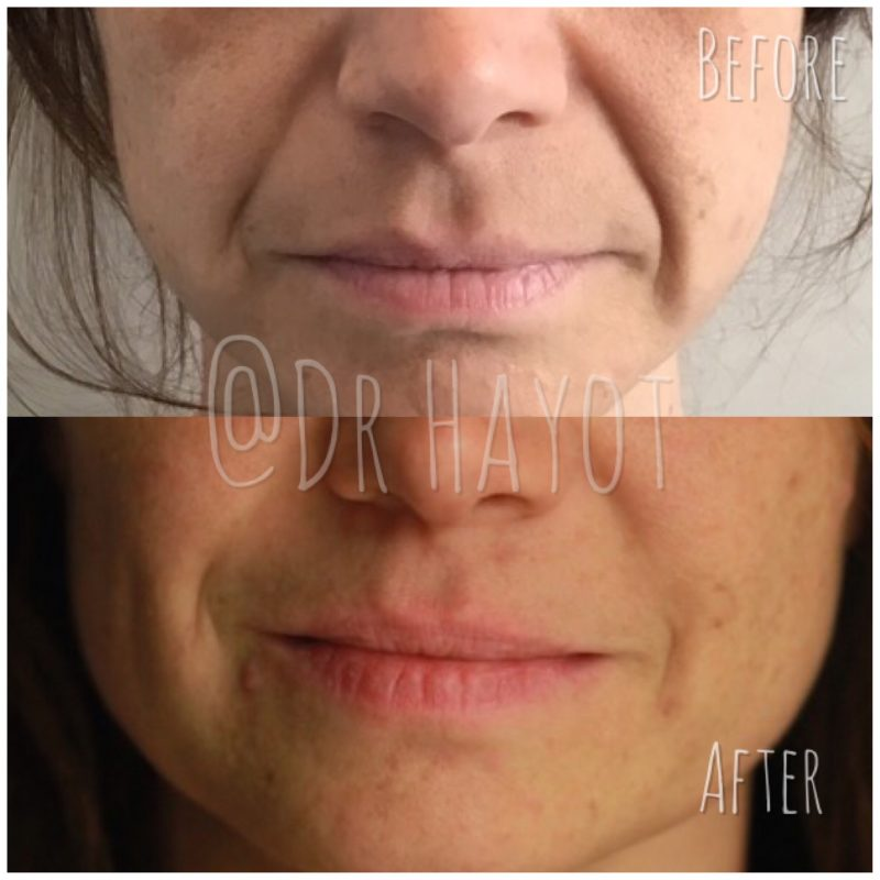 Results of anti-wrinkle injections on the face around the mouth
