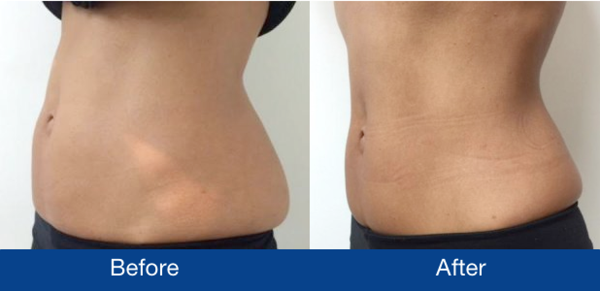 Before and after CoolSculpting treatment on woman's stomach and lower back