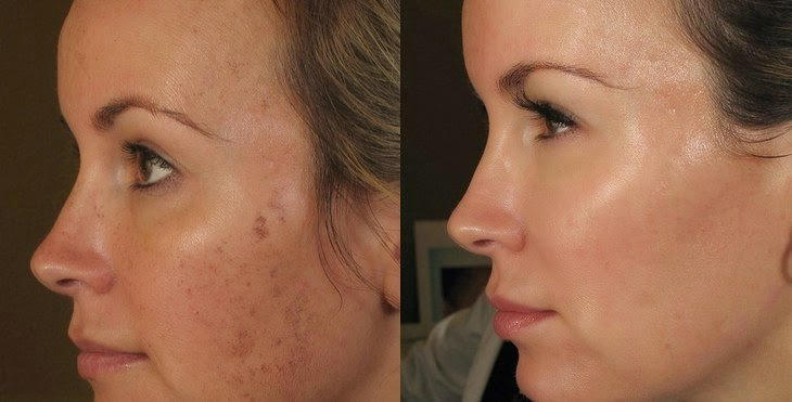 Dermapen before and after image of woman's face with acne and scarring