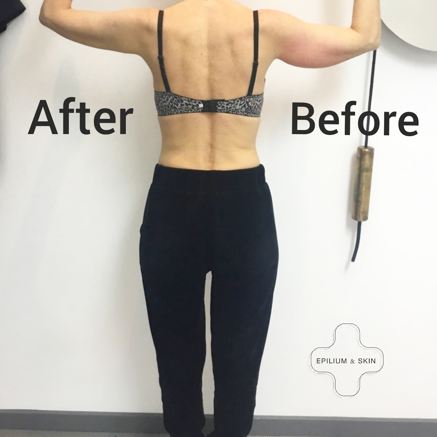 Before and after CoolSculpting treatment on woman's under arm and back