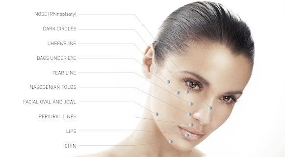 Locations on the face which are ideal for Dermal Fillers