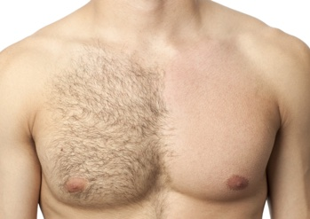 Man's chest showing laser hair removal treatment results on one side of chest