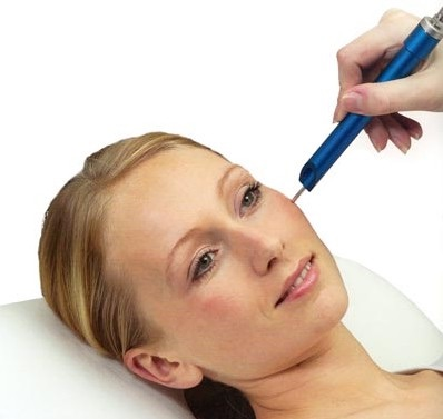 Woman laying down receiving dermapen treatment on face