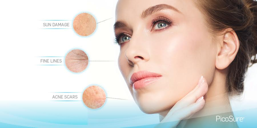 Woman's face highlighting sun damage, fine lines, and acne scars by PicoSure