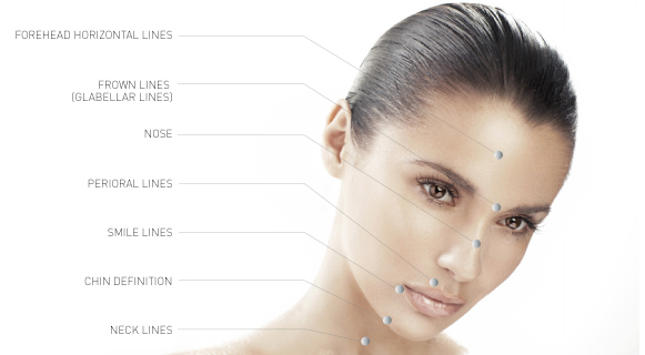 Anti Wrinkle Treatment diagram frown lines, forehead lines, chin