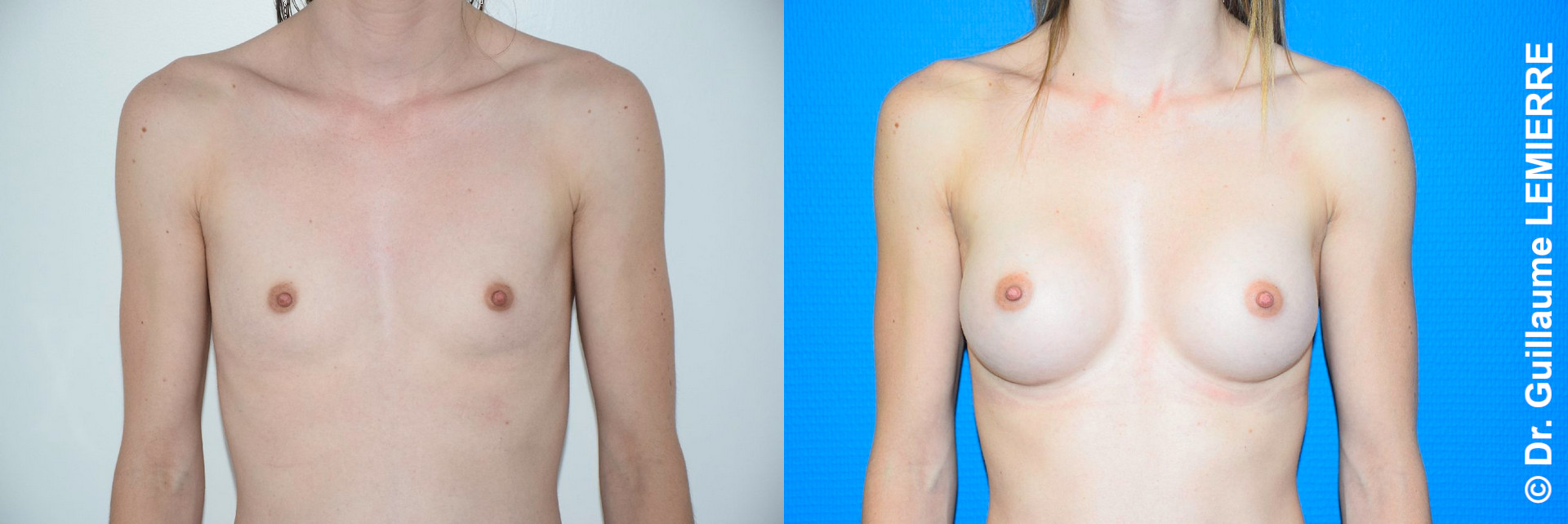 Breast implant before after exemple2